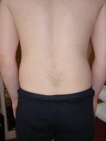 back-pain-1491800_960_720