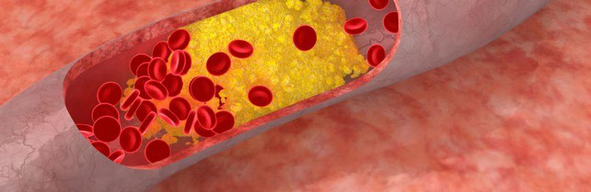 xcholesterol-jpg-pagespeed-ic-gwkeynbt6d