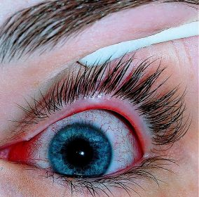 800px-an_eye_with_viral_conjunctivitis