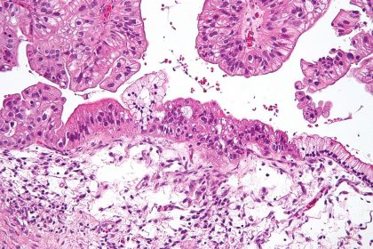1024px-Mucinous_lmp_ovarian_tumour_intermed_mag