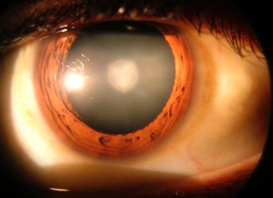 800px-cataract_in_human_eye